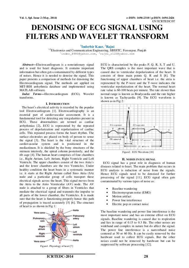 DENOISING OF ECG SIGNAL USING FILTERS AND WAVELET TRANSFORM