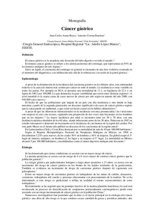 Monografía  Cáncer gástrico Juan Carlos Arana Reyes,1 Antonio Corona Bautista2 1  Cirugía General, Centro Médico Nacional ...