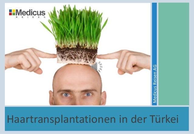 Haartransplantationen in der Türkei MedicusReisenAG