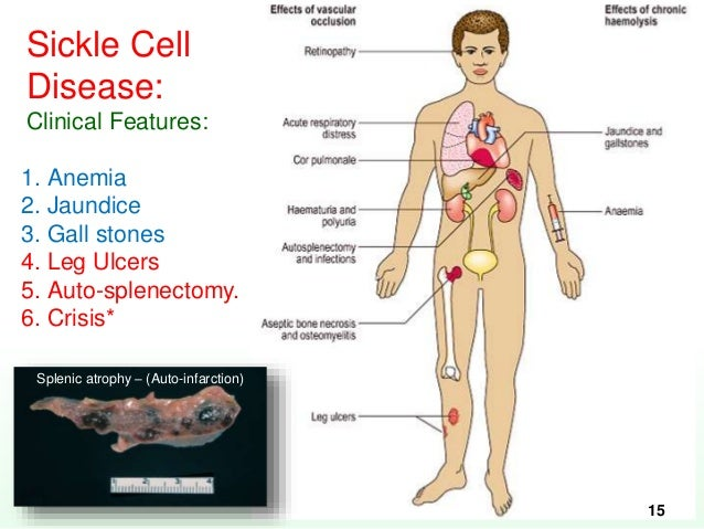 Sickle cell anemia in adults