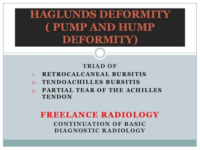 HAGLUNDS DEFORMITY  ( PUMP AND HUMP     DEFORMITY)             TRIAD OF1. RETROCALCANEAL BURSITIS2. TENDOACHILLES BURSITIS...