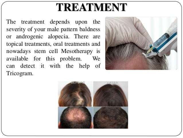 androgenic alopecia treatment - pictures, photos