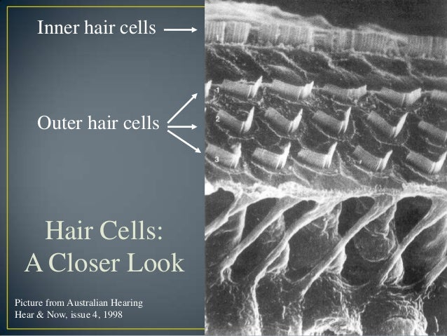 Photo of cilia damage of person with moderate hearing loss