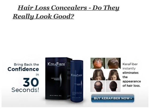 Hair Loss Concealers - Do TheyReally Look Good?