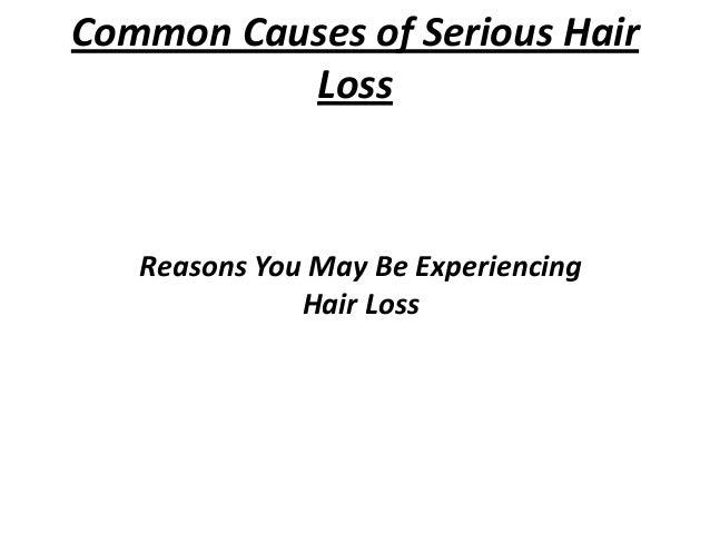 Common Causes of Serious Hair Loss  Reasons You May Be Experiencing Hair Loss