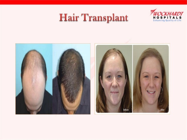 Why hair transplant? •  Hair loss is an embarrassing condition for many, especially when it is at a young age.  •  Many me...
