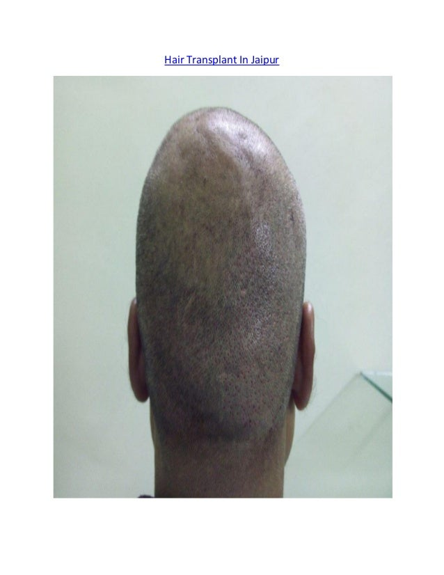 Hair Transplant In Jaipur