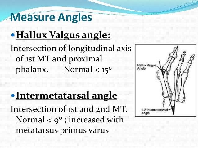 Hallux valgus UG lectu... Metatarsal Bone Pain