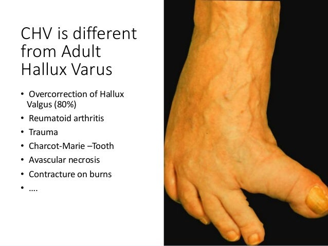 Congenital Hallux varus: How to deal with it?