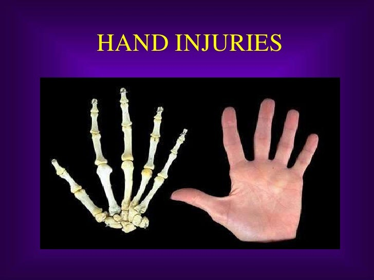 HAND INJURIES<br />