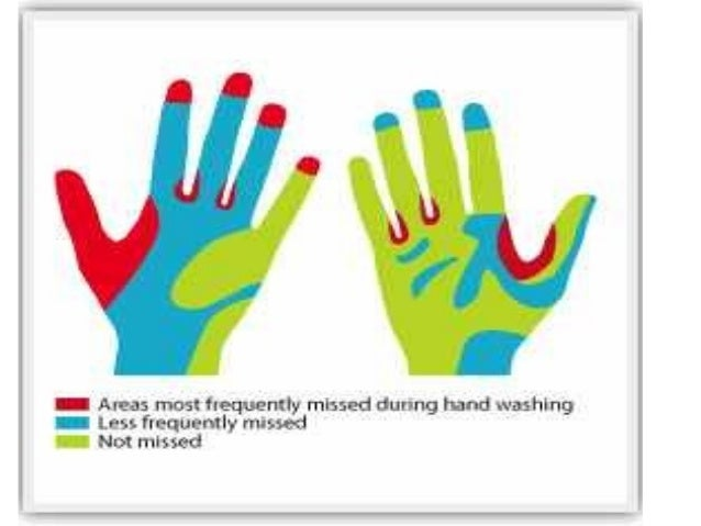 How to Put on Sterile Gloves images