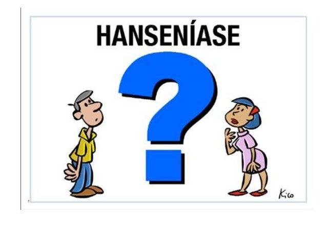 Hanseniase   slide