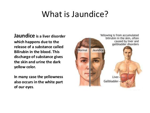 Jaundice treatment unknown facts