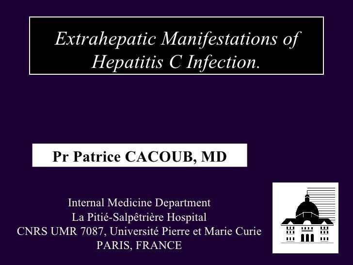 Extrahepatic Manifestations of Hepatitis C Infection. Pr Patrice CACOUB, MD Internal Medicine Department La Pitié-Salpêtri...