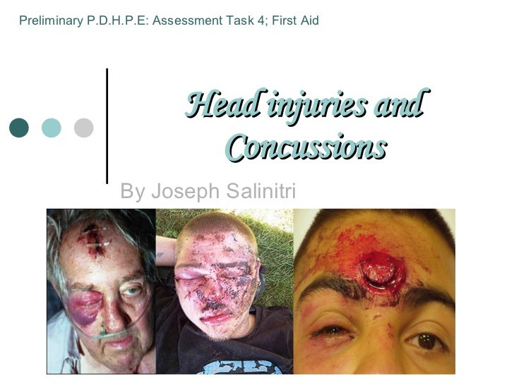 Head injuries and Concussions By Joseph Salinitri Preliminary P.D.H.P.E: Assessment Task 4; First Aid