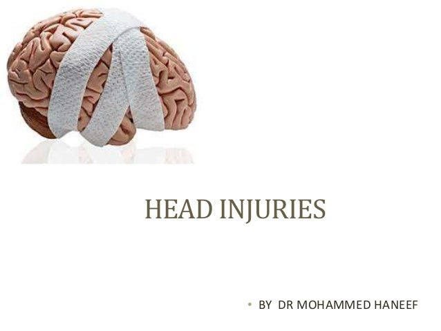 HEAD INJURIES • BY DR MOHAMMED HANEEF