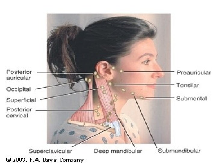 how to detect swollen glands