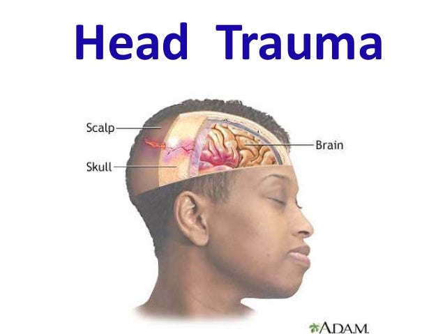 http://image.slidesharecdn.com/headtrauma-150124055434-conversion-gate02/95/head-trauma-1-638.jpg?cb=1422101224