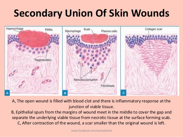 reaction paper healing the wounds of Reaction paper to healing the wounds of sexual addiction tiffany carthins  liberty university abstract dr laaser (2004) provides a detailed.