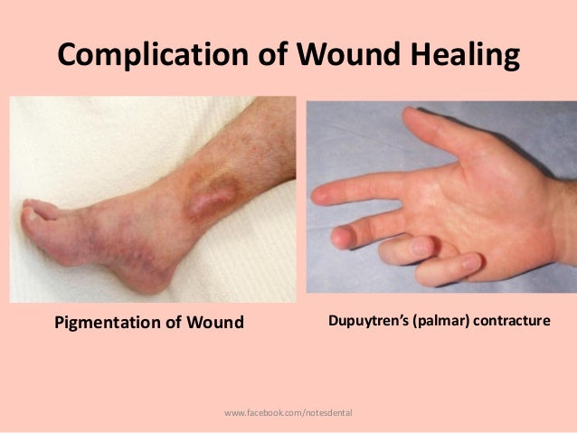 the stimulation of the wound healing Electrical stimulation and wound healing references agren ms, engel ma, and mertz pm (1994) collagenase during burn wound healing: influence of a hydrogel.
