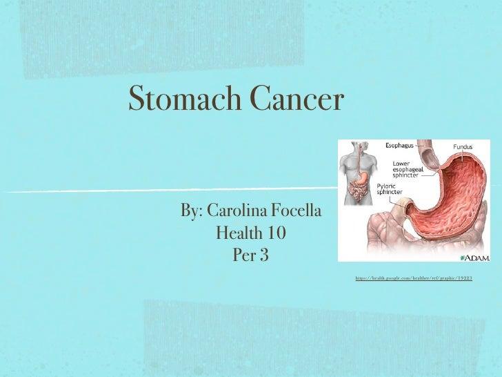 Stomach Cancer      By: Carolina Focella         Health 10           Per 3                           https://health.google...