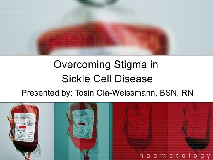 Overcoming Stigma in  Sickle Cell Disease Presented by: Tosin Ola-Weissmann, BSN, RN