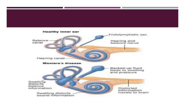 The pathognomonic symptoms include episodic vertigo, ipsilateral fluctuating hearing loss, aural fullness and tinnitus11 2