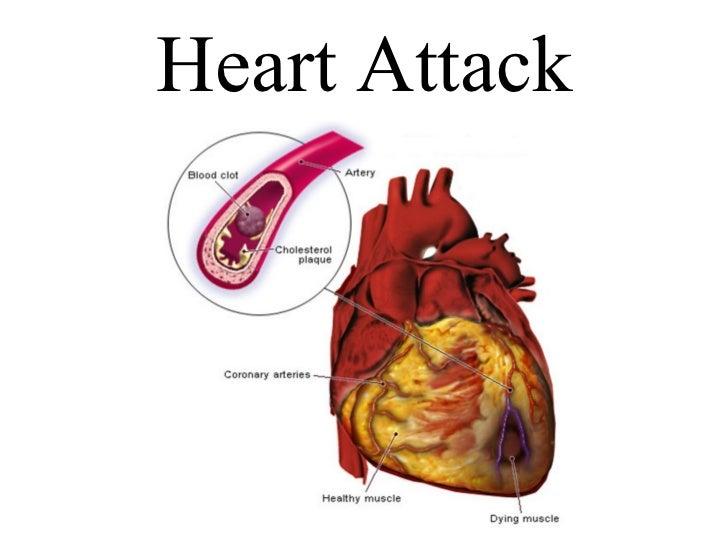 Heart attack plaque  blood pressure