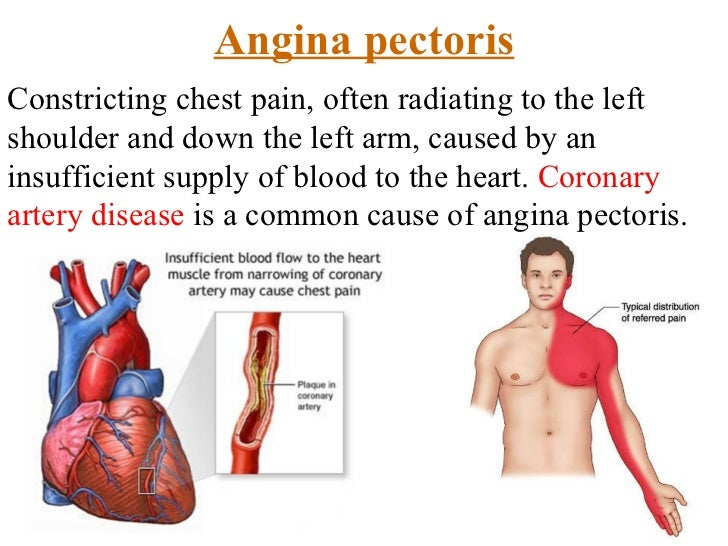 Left side chest pain in adults