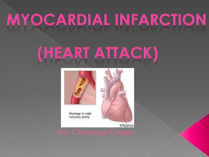 Myocardial infarction<br />(Heart Attack)<br />By: Chirontega Cooper<br />