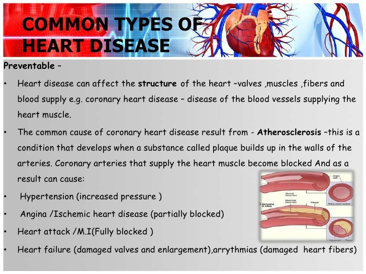 the different types of cardiovascular diseases Heart disease is the treatment of a heart attack will depend on the type and severity of the heart attack several types of heart attacks in a heart attack, a.