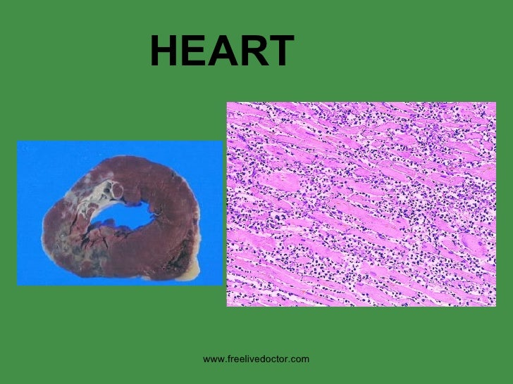 HEART www.freelivedoctor.com