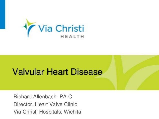 50+ Heart Valve Presentation