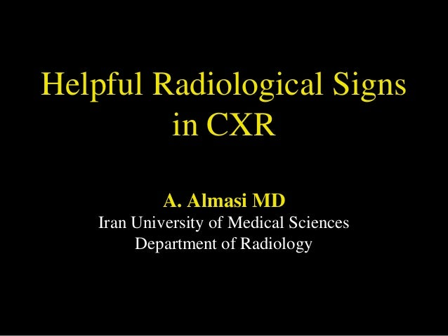 Helpful Radiological Signs in CXR A. Almasi MD Iran University of Medical Sciences Department of Radiology