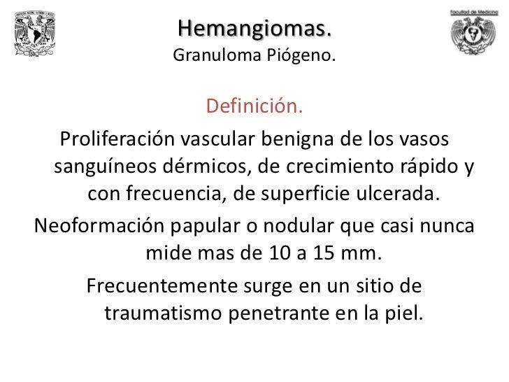 Las trombosis venosas la diagnosis