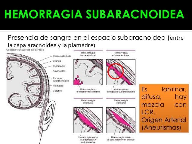 La hipertrofia del ventrículo izquierdo a la osteocondrosis