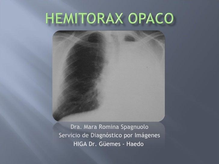 Dra. Mara Romina Spagnuolo Servicio de Diagnóstico por Imágenes HIGA Dr. Güemes - Haedo