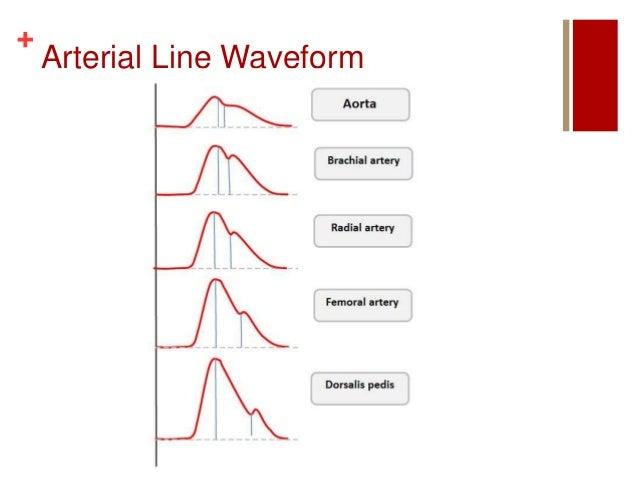A Line Arterial Monitoring : Hemodynamic monitoring r weinzierl