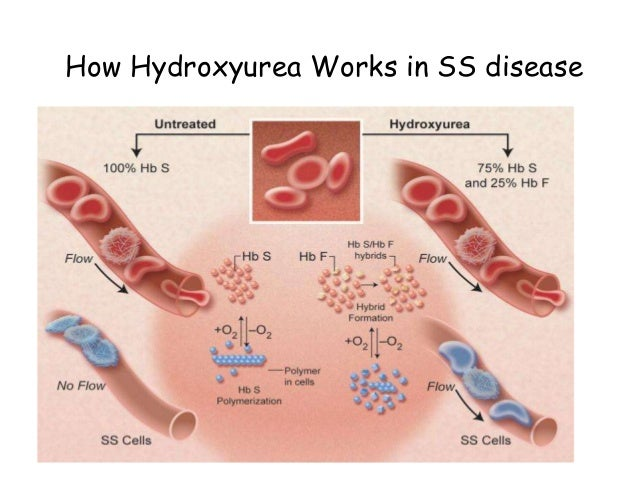 Hydroxyurea Sickle Cell