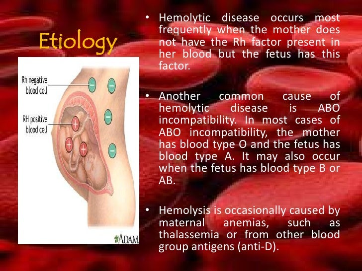 hemolytic disease of the newborn Hemolytic disease of the newborn is a mismatch in red blood cells between mother and fetus which can cause significant anemia and other problems.
