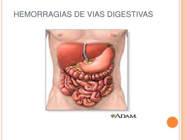 Hemorragias vias digestivas