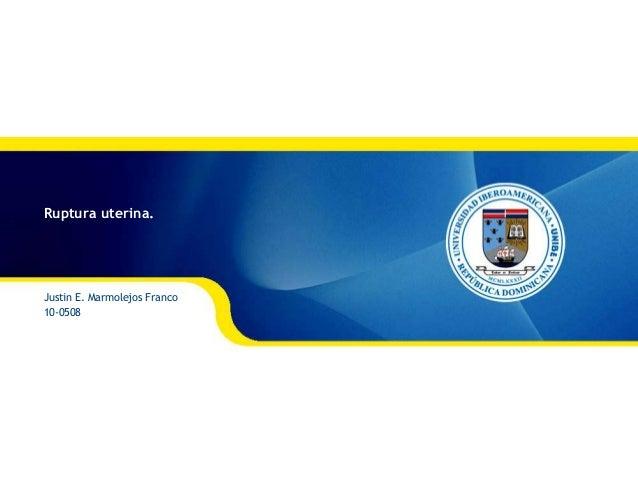 Ruptura uterina. Justin E. Marmolejos Franco 10-0508