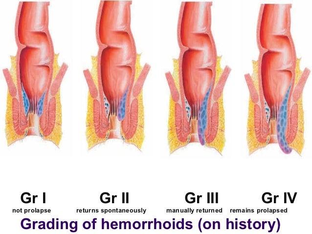 Hemorrhoids- Thrombosed Hemorrhoids