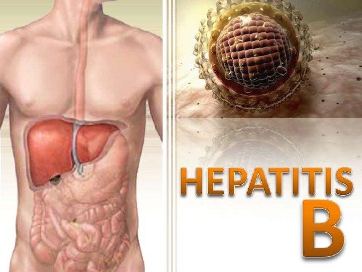 HEPATITIS<br />B<br />