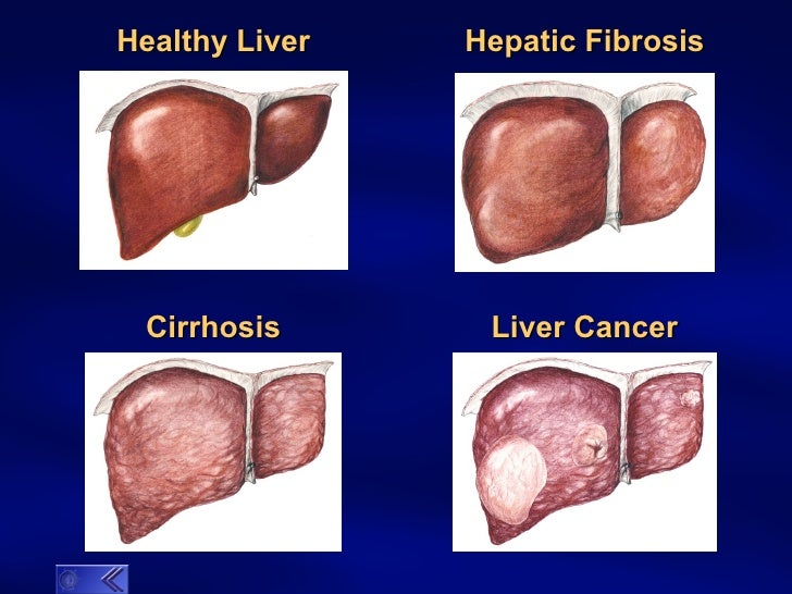 cirrhosis of the liver Cirrhosis of the liver stage 4 this site can teach you how to manage, treat and even reverse cirrhosis of the liver stage 4 many of our members have been able to resume near normal lives without needing a transplant.