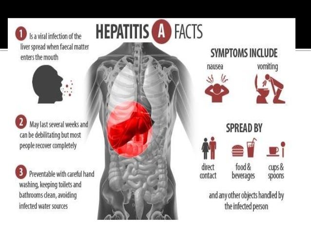 an analysis of the symptoms causes and treatment of hepatitis Hepatitis b - symptoms, treatment,  infection that causes inflammation of the liver (hepatitis)  a small sample of liver tissue for laboratory analysis.