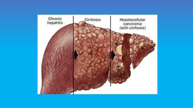 Signs of hepatitis c in adults