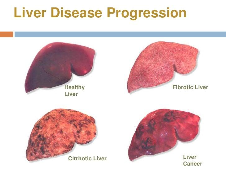 management of liver cirrhosis pdf