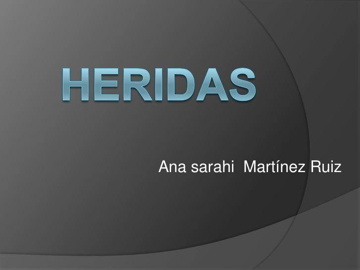 Ana sarahi Martínez Ruiz