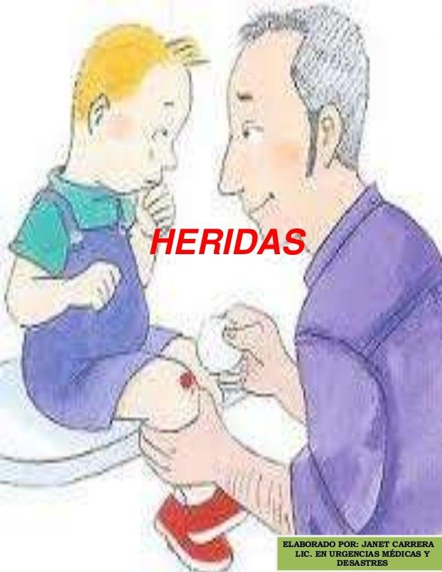 HERIDAS      ELABORADO POR: JANET CARRERA        LIC. EN URGENCIAS MÉDICAS Y                 DESASTRES